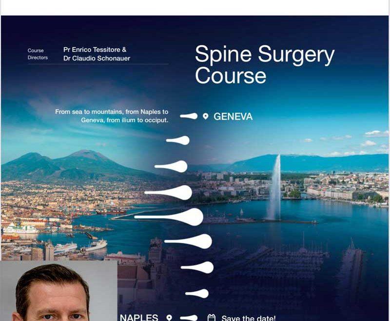 Chirurgia vertebrale: collaborazione tra Ginevra e Napoli